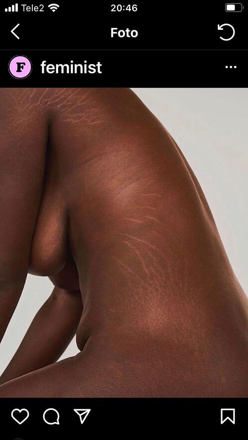 kvinna med stretchmarks